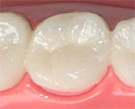 奥歯メタルボンド