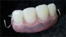 入れ歯(プラスチック床1)