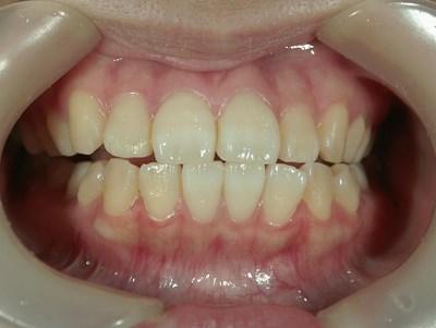 症例紹介2私の歯って黄色いの?