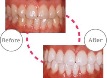 白い歯で新生活始めませんか?